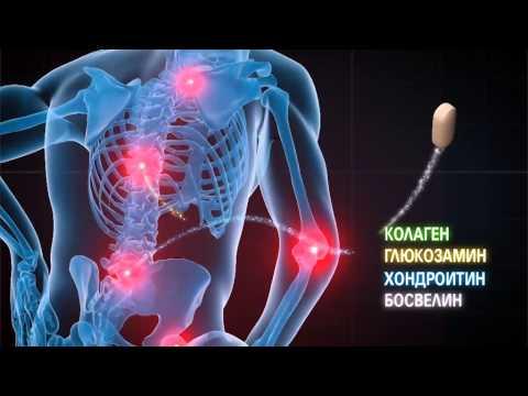 Видео о препарате Артростоп Рапид плюс Метилсульфонилметан N180