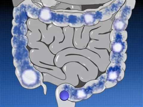 Видео о препарате Салофальк пена для ректального введения 1г №14 (14 штук)
