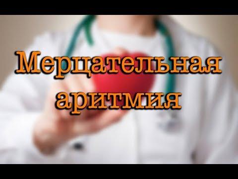 Видео о препарате Мультак Дронедарон таб, 400мг №60