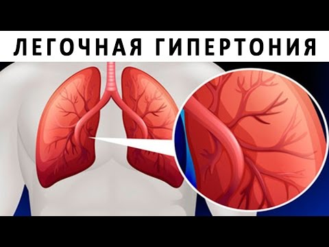 Видео о препарате Опсамит (Opsumit, Мацитентан) таб. 10мг №28
