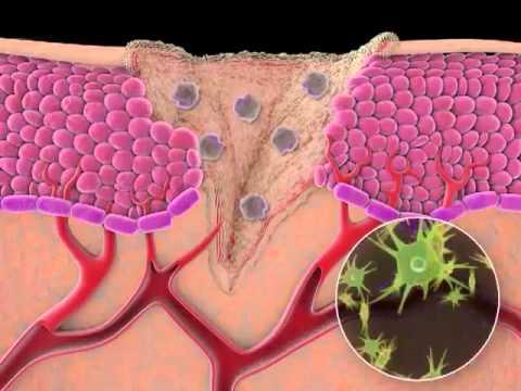 Видео о препарате Генгигель (Gengigel) гель для десен 20мл