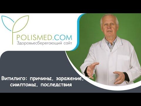 Видео о препарате Монобензон Беноквин мазь 30г