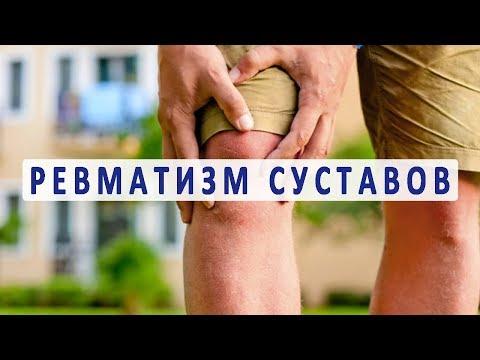 Видео о препарате Реуматон-F капсулы N40