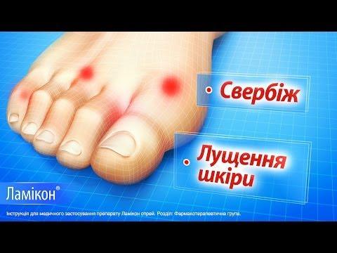 Видео о препарате Ламикон 1% спрей 25г