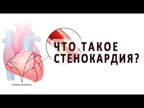 Видео о препарате Депонит 10 Нитродерм пластырь №15