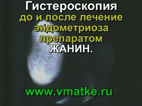 Видео о препарате Жанин др, N21