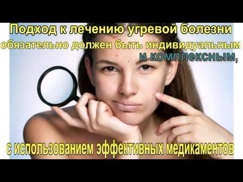 Видео о препарате Акненормин капсулы (Aknenormin) 20мг №30