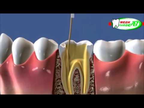 Видео о препарате Ледермикс паста стоматологическая туба 5г