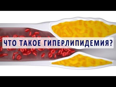 Видео о препарате Гемфиброзил Италия 600мг №30